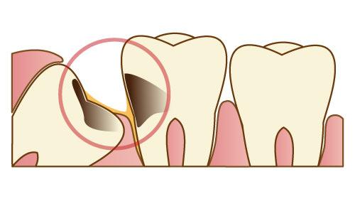 2.横向きに生えていて、歯磨きが行き届かず虫歯になっている場合